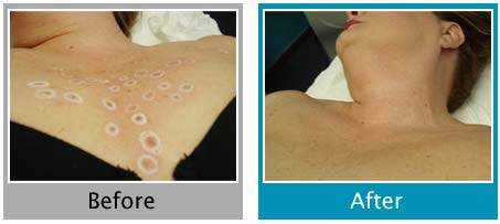 Laser Skin Treatment Lesion Removal Virginia