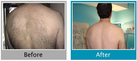 Permanent Back Hair Removal Virginia